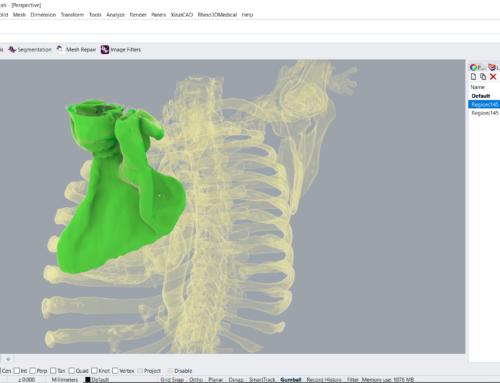 Region Grow and combine Bounding Box/Eraser to extract bone parts