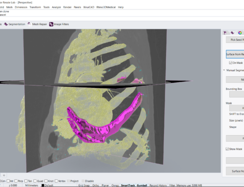 Segmenting bone structures with Bounding Box and Eraser Mask