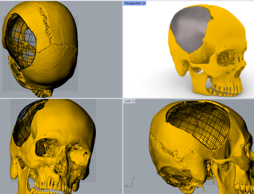 Implant for Cranioplasty